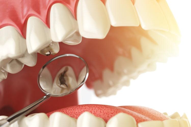 Carie dentali