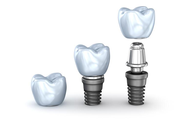 Impianti dentali cosa sono