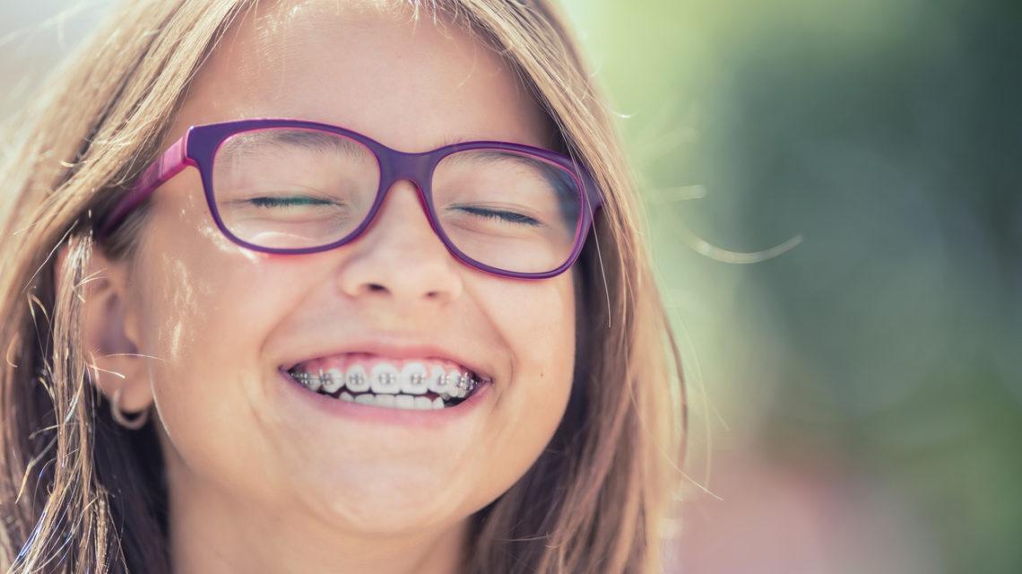 Tipi di apparecchi per denti
