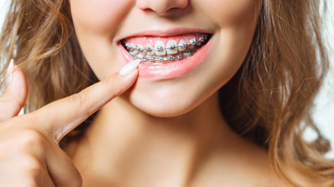 Apparecchi denti fissi