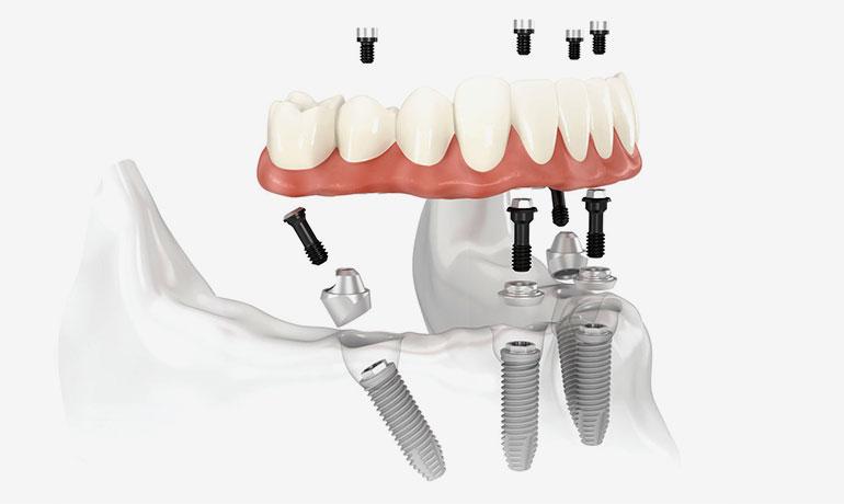 implantologia-a-carico-immediato