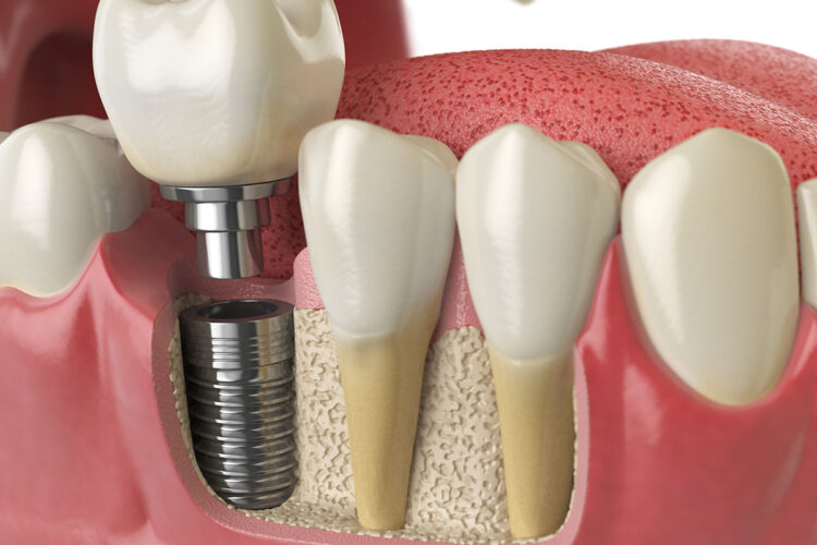 Implantologia metal free